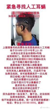丢失人造耳蜗后,李女士发布寻物启事。昨日,李女士因内容表述不准确致歉。受访者供图