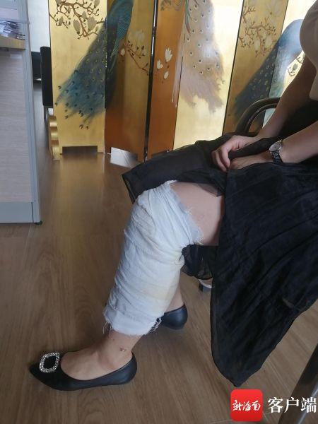 9月16日,王女士左小退至脚踝处还严严实实裹着一层纱布。记者姜飞 摄