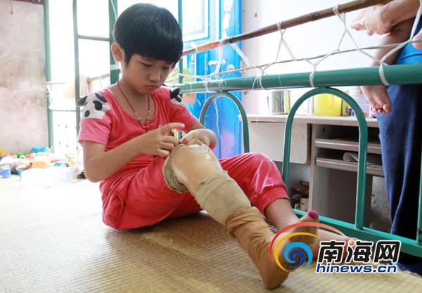 万宁/万宁女童遭车辆碾压截肢换假肢费用高难承担